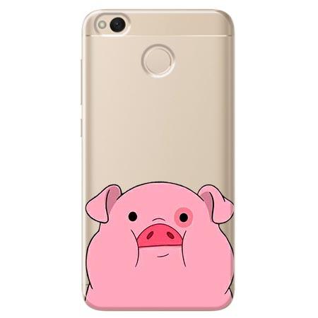 Etui na telefon Xiaomi Note 5A - Słodka różowa świnka.